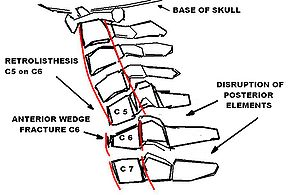 Neurology and Neurosurgery/Incomplete Spinal Cord Injuries