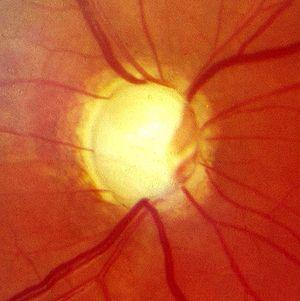 Glaukompapille2