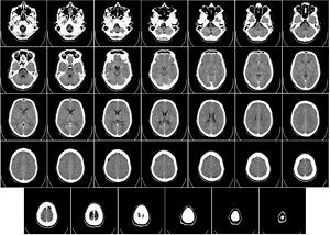 English: Computer tomography of human brain, f...