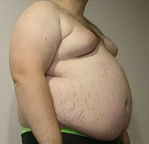 Picture of an Obese Teenager (146kg/322lb) wit...