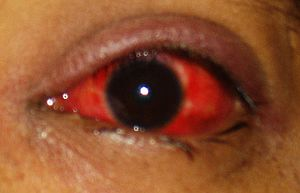 acute conjunctivitis Day 3