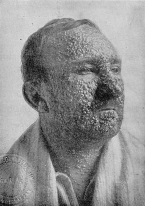 English: Smallpox victim, Illinois, 1912