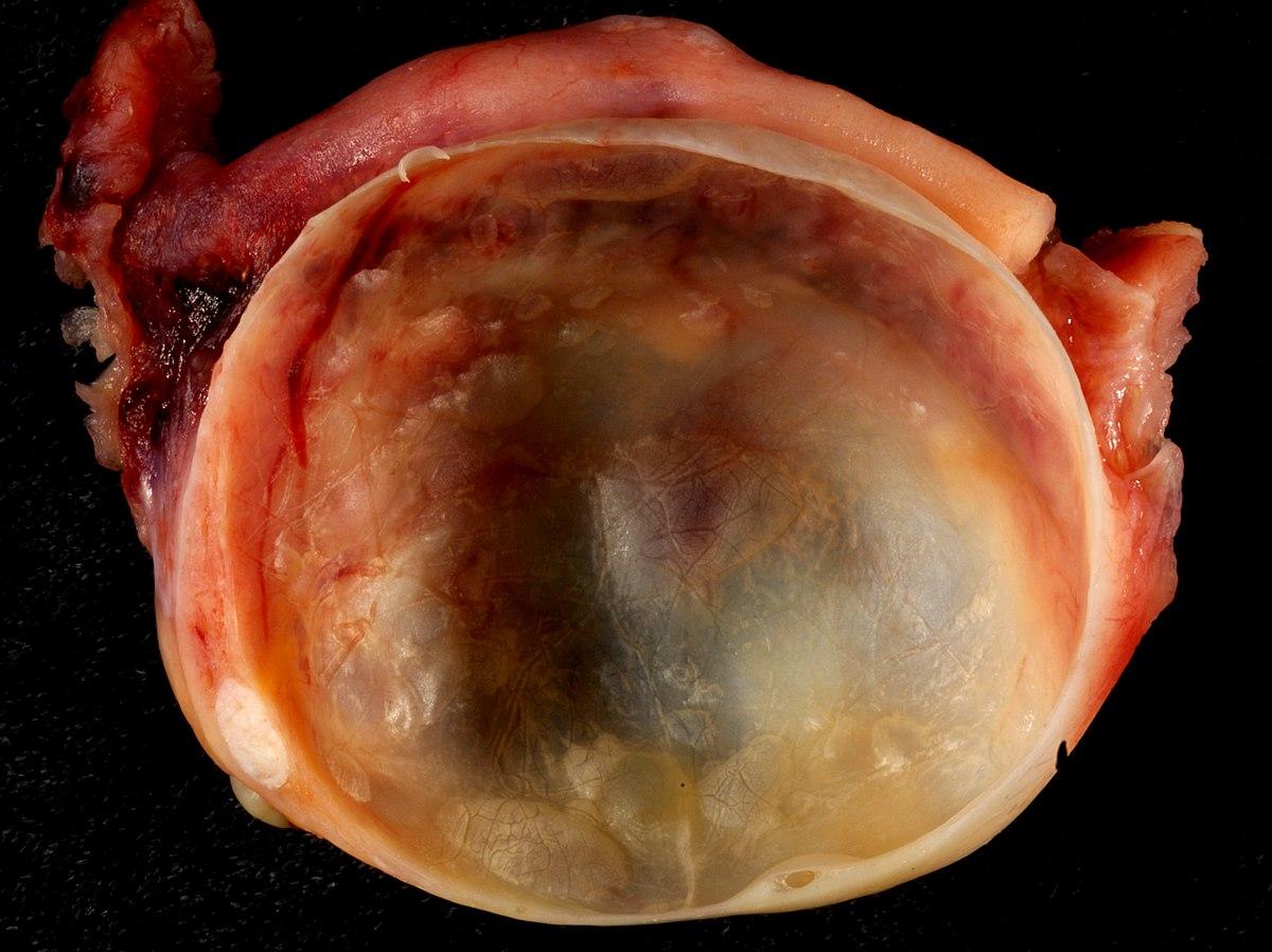Ovarian cyst - Wikipedia