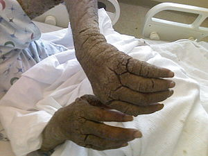 English: Photo of AIDS Patient with crusted Sc...