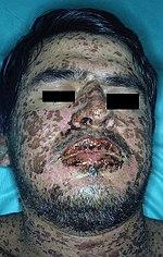 Sulfonamide (medicine) - Wikipedia, the free encyclopedia