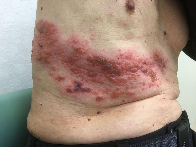 penyakit kulit herpes setelah tiga 3 hari
