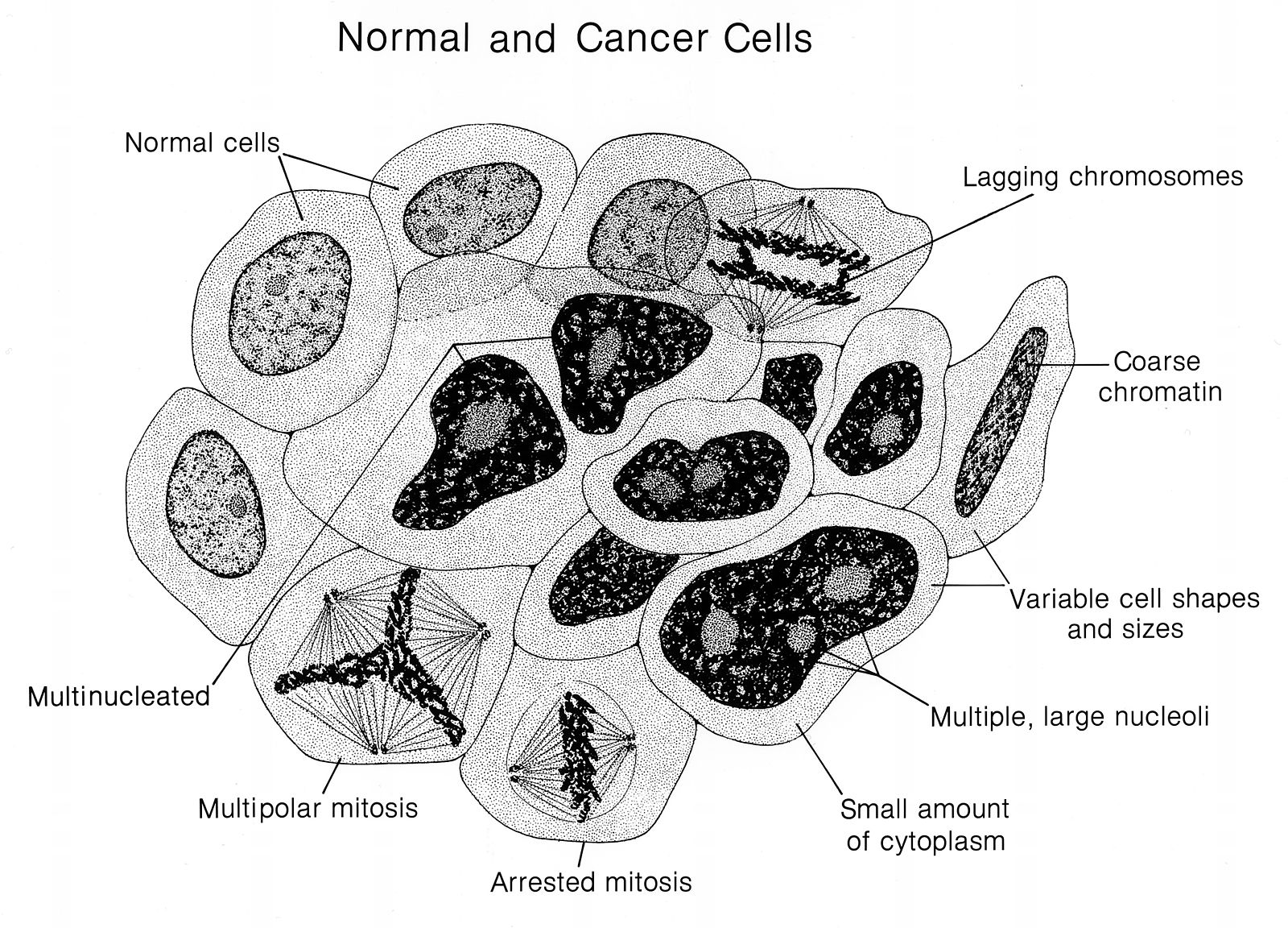 File:Normal and cancer cells (labeled) illustration.jpg