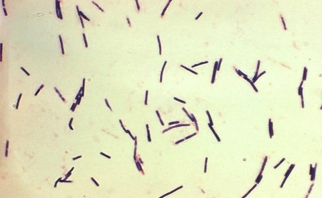 Clostridium Perfringens Wikipedia La Enciclopedia Libre