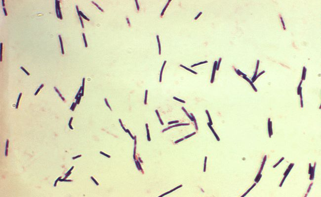 Clostridium Perfringens Wikipedia