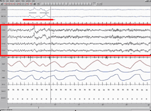 Polysomnography (PSG) is a multi-parametric te...
