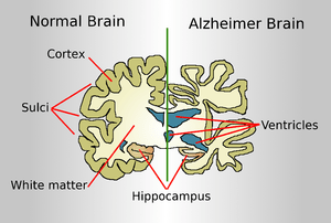 Drawing comparing how a brain of an Alzheimer ...