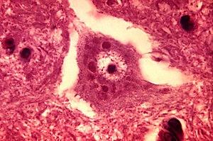 Description: This micrograph depicts the histo...