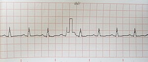 English: ECG with notching of the ascending br...
