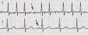 Scheme of atrial fibrillation (top) and sinus ...