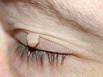 Soft Fibroma (fibroma molle).