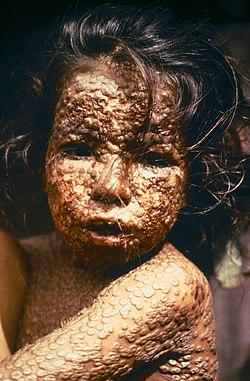 Cubierta de las características erupciones en la piel. Bangladesh, 1973.