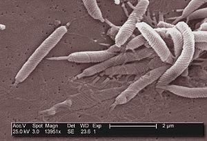 English: This scanning electron micrograph dep...