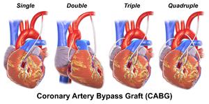 Coronary artery bypass surgery - Wikipedia
