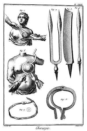 English: breast cancer surgery in 18. century ...