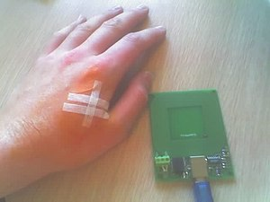 Image of hand with implanted RFID chip, next t...