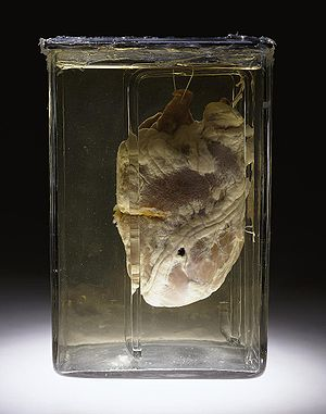 Heart of a 26-year-old man, perforated by a bu...