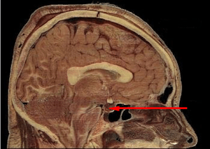 Location of the pituitary gland in the human brain