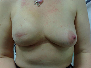English: Skin sparing mastectomy and implant r...