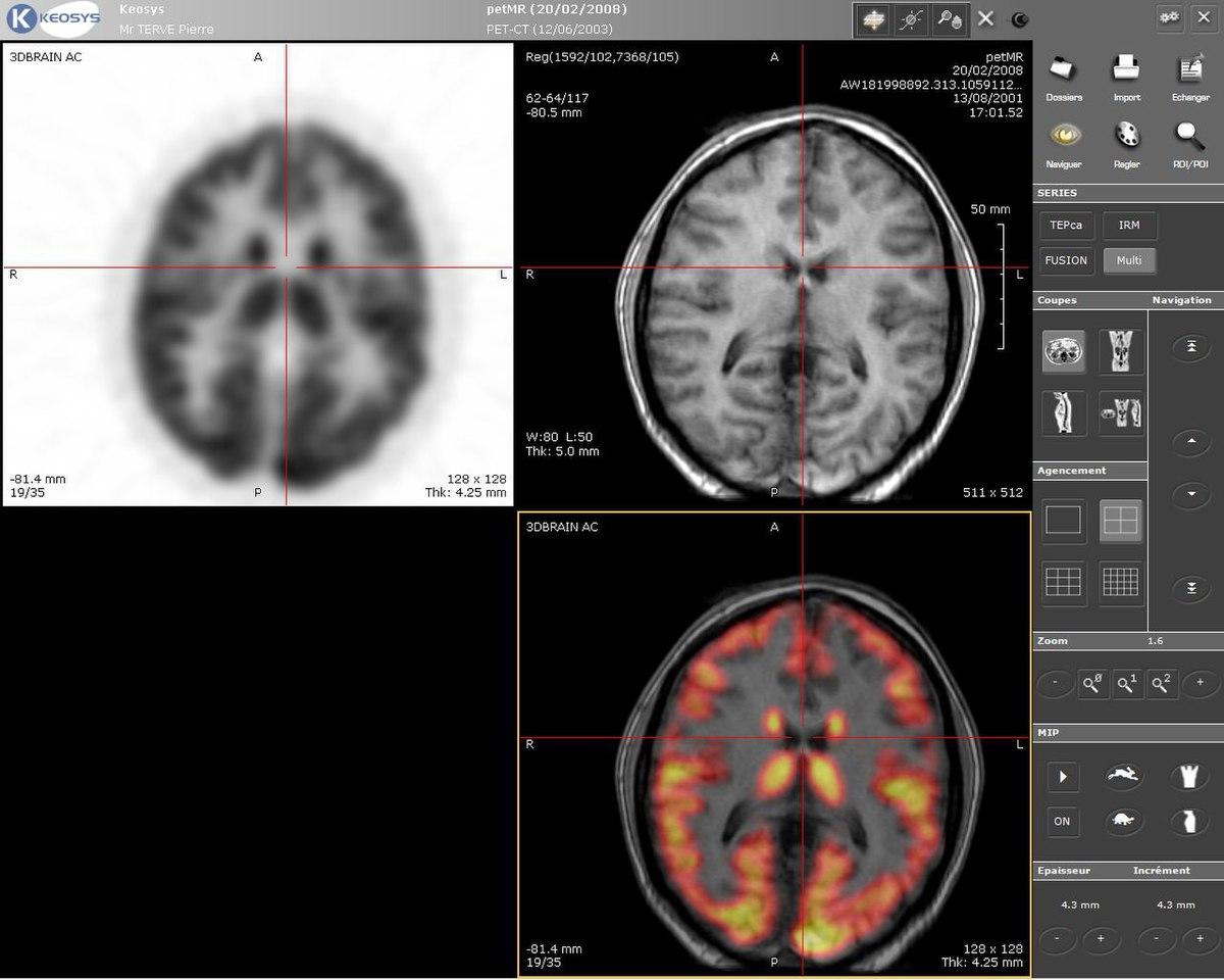 Neurobiologa  Wikipedia la enciclopedia libre