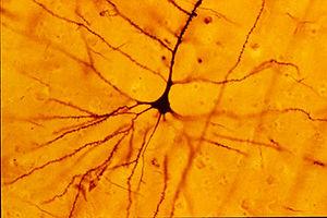 Pyramidal cell -  A human neocortical pyramida...