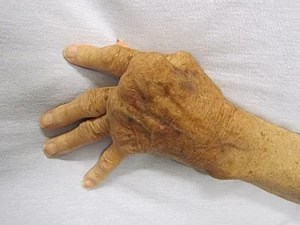 A hand effected by rheumatoid arthritis.