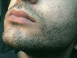 Facial hair of a male.