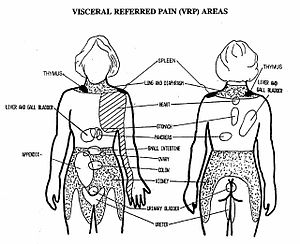 Theuplink (2004), Visceral referred pain areas...