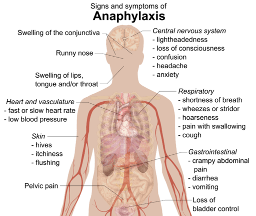 Signs and symptoms of anaphylaxis