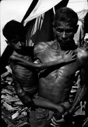 English: Child suffering with Marasmus in Indi...