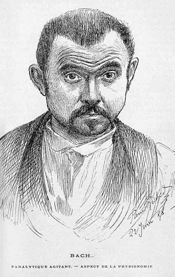 English: Drawing of the face of a Parkinson's disease patient showing characteristic symptoms: mainly hypomimia, a expression-less mask-like face. Appeared in Nouvelle iconographie de la Salp?(C)tri??re 1 : clinique des maladies du syst??me nerveux / publi?(C)e sous la direction du professeur Charcot,... ; par Paul Richer,... Gilles de la Tourette,... Albert Londe,.... - 1888. Chapter 'Habitude exterieure et facies dans la paralyse agitante'. Plate XL1V