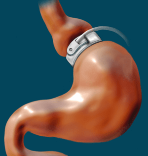 English: Gastric Banding