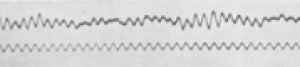 First published Electroencephalogram of a human