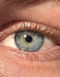 Eye color also wikipedia rh enpedia