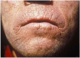 Erythropoietic protoporphyria - Wikipedia the free ...