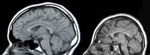 MRIs of a normal individual (left) and a patie...