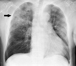 Pneumonia - Wikipedia