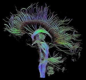 Tractographic reconstruction of neural connect...