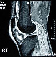 骨軟骨腫とは - goo Wikipedia (ウィキペディア)