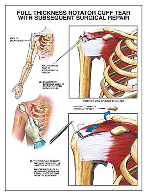 English: Rotator cuff tear surgical repair pro...