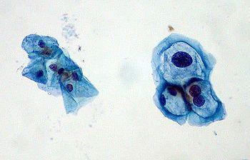 HPV Pap smear