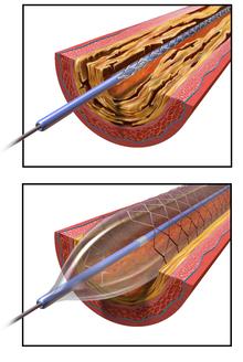 Angioplasty - Wikipedia