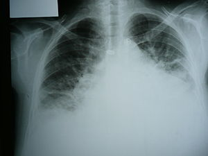 English: Medical X-rays Congestive heart failure