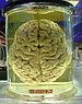 English: a human brain in a jar