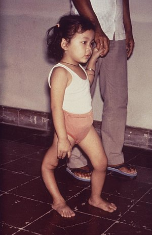 This child is displaying a deformity of her ri...