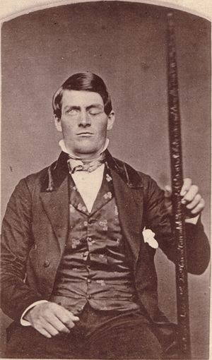 Phineas Gage with the tamping iron